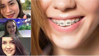 """Photo of #PrimaDată. """"Cucerește-ți"""" sănătatea cu un zâmbet frumos. Ce trebuie să știi când porți primul tău aparat dentar?"""
