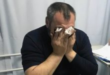 Photo of foto, video | Mai mulți susținători ai lui Petic, ajunși la spital. Ce spune poliția despre intervenția cu gaze lacrimogene?