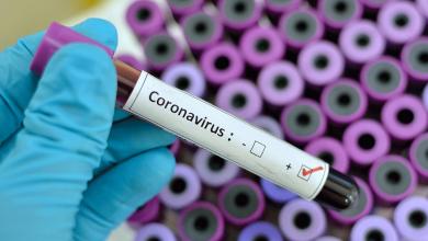 Photo of foto | Primele teste pentru depistarea coronavirusului de tip nou au ajuns în Republica Moldova