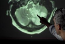 """Photo of Creierul uman ar """"îmbătrâni"""" cu 10 ani după COVID-19. """"Există consecinţe cognitive cronice"""""""