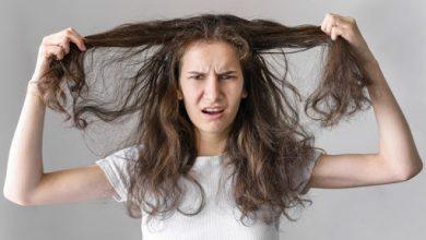 Photo of Ai grijă de părul tău în sezonul rece: Cinci trucuri pentru a-l proteja împotriva ruperii