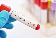Photo of Încă 18 decese cauzate de noul coronavirus. Câte persoane au fost diagnosticate cu COVID-19 în ultimele 24 de ore