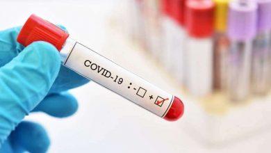 Photo of Bilanțul COVID-19 în ultimele 24 de ore: Câte cazuri noi de infectare au fost înregistrate în Republica Moldova