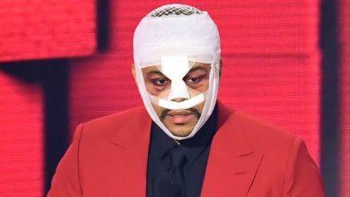 Photo of video | The Weeknd, cu întreaga față bandajată pe scena American Music Awards. Ce s-a întâmplat cu artistul
