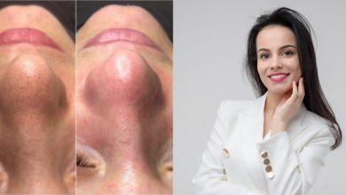 Photo of Problemele pe care le întâmpinăm dacă nu acordăm atenție tenului: Cosmetologul Lia Inculeț explică pașii pentru îngrijirea corectă a feței