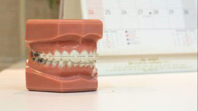 Photo of Ortodonția – calea spre un zâmbet sănătos și o dantură perfectă