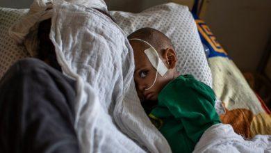 Photo of Peste 100 de mii de copii sunt aproape de a muri de malnutriție severă, în regiunea Tigray, sfâșiată de război civil
